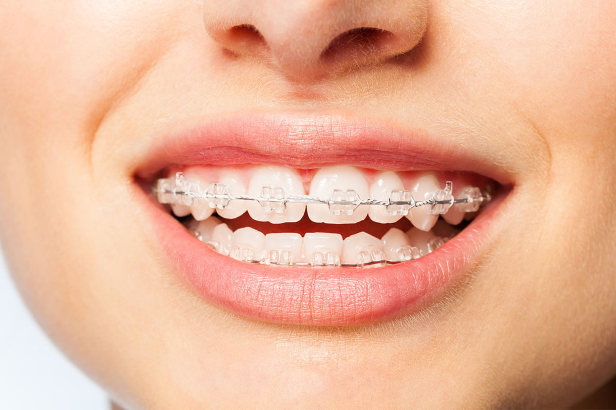 Takma dişler: avantajlar, dezavantajlar ve kullanım özellikleri
