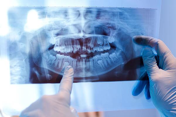 ağız ve çene cerrahisi