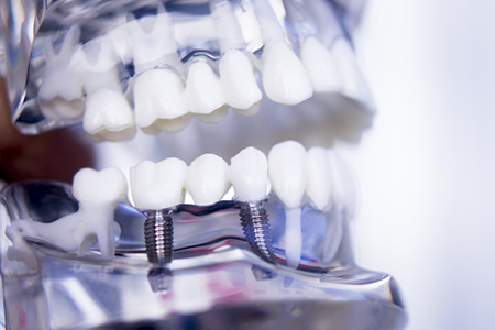 ağız diş ve çene cerrahisi
