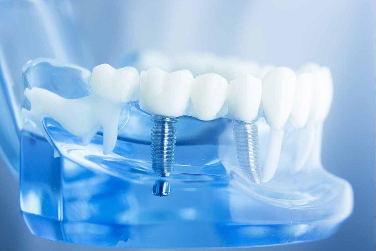 dental-implant-tedavisinde-risk-varmıdır-1200x800.jpg