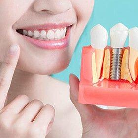 diş implant işlemi