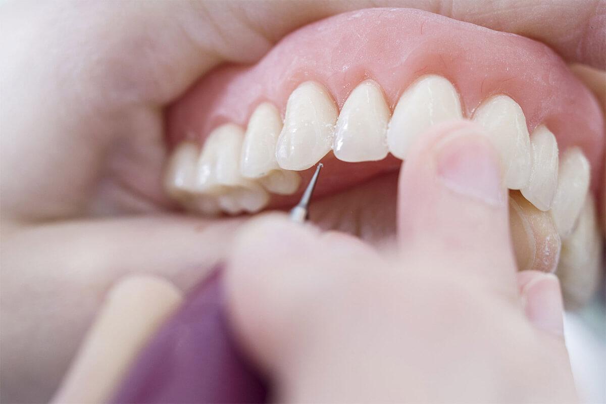 diş-kayıplarında-protez-diş-tedavisi-1200x800.jpg