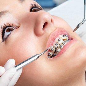 diş teli tedavisi uygulama