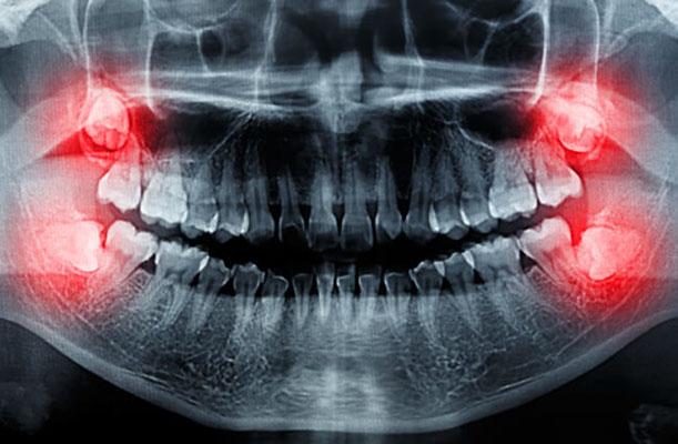 gömülü yirmilik diş çekimi