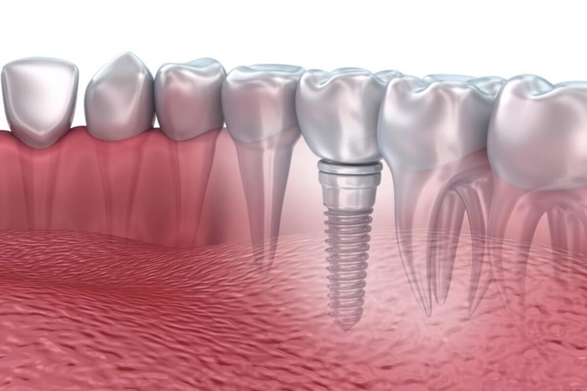 implant-diş-fiyatları-1200x800.jpg