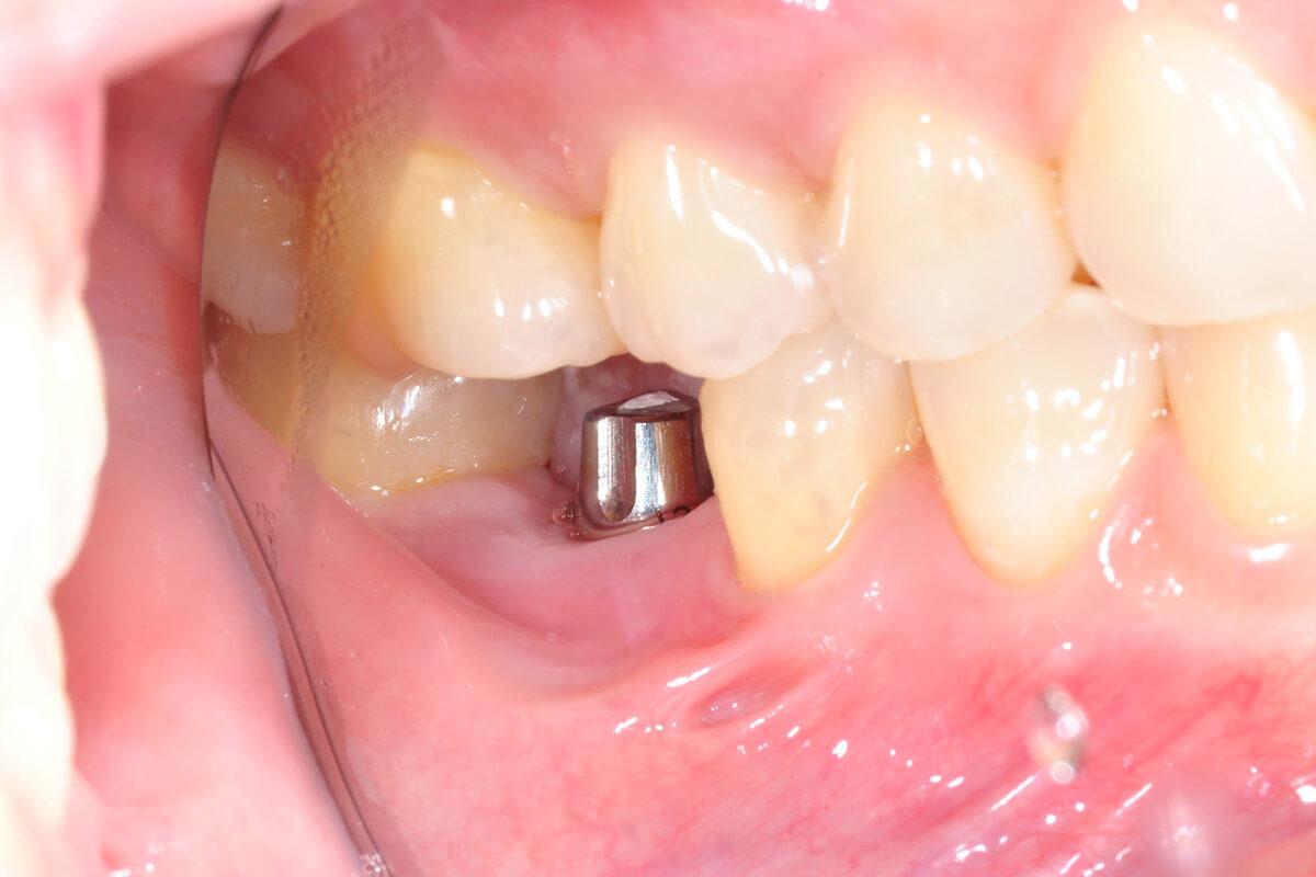 kısmi-diş-implantı-1200x800.jpg