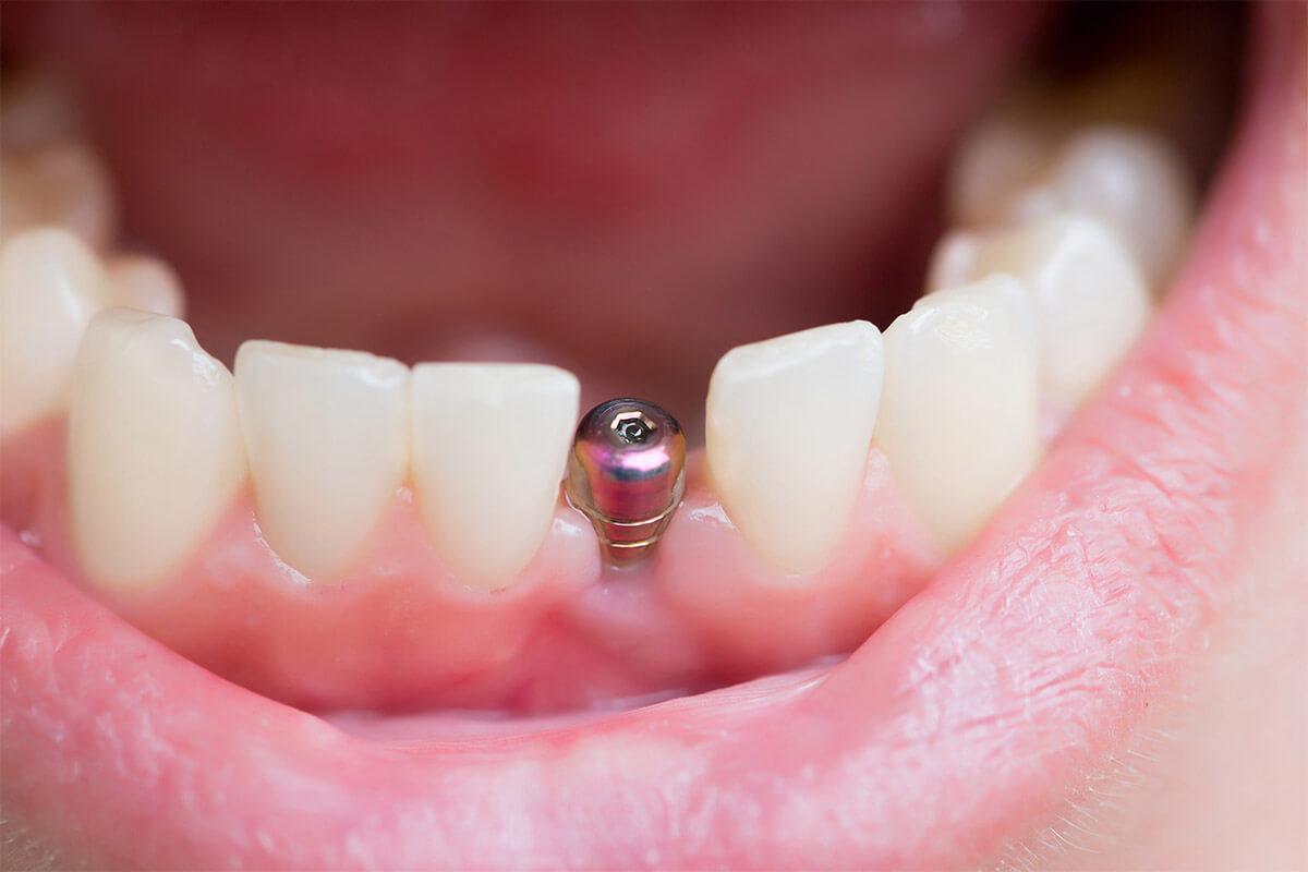 tek-diş-eksikliğinde-implant-1200x800.jpg