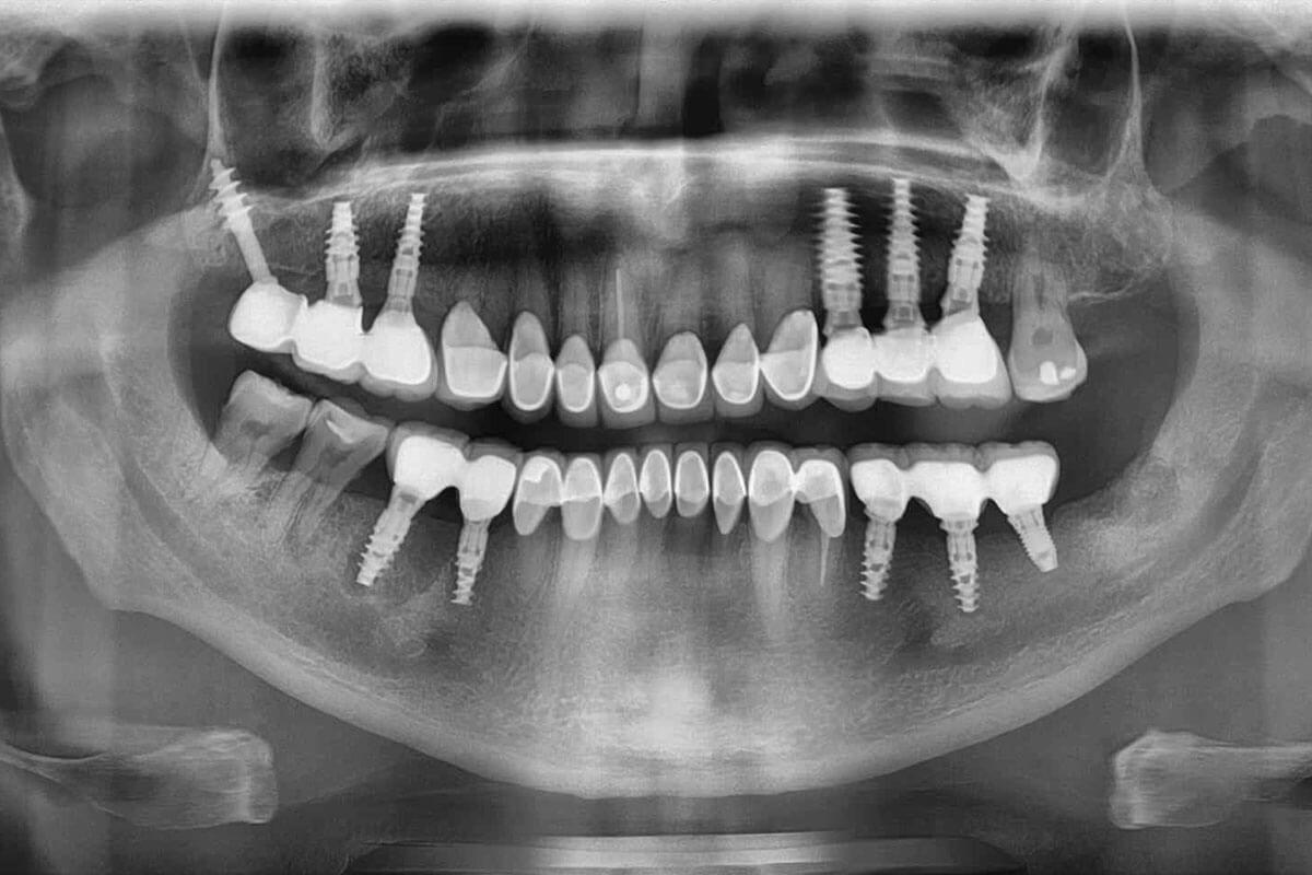 total-diş-kaybı-implantı-1200x800.jpg